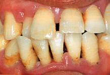 歯周治療後