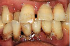 歯周治療前